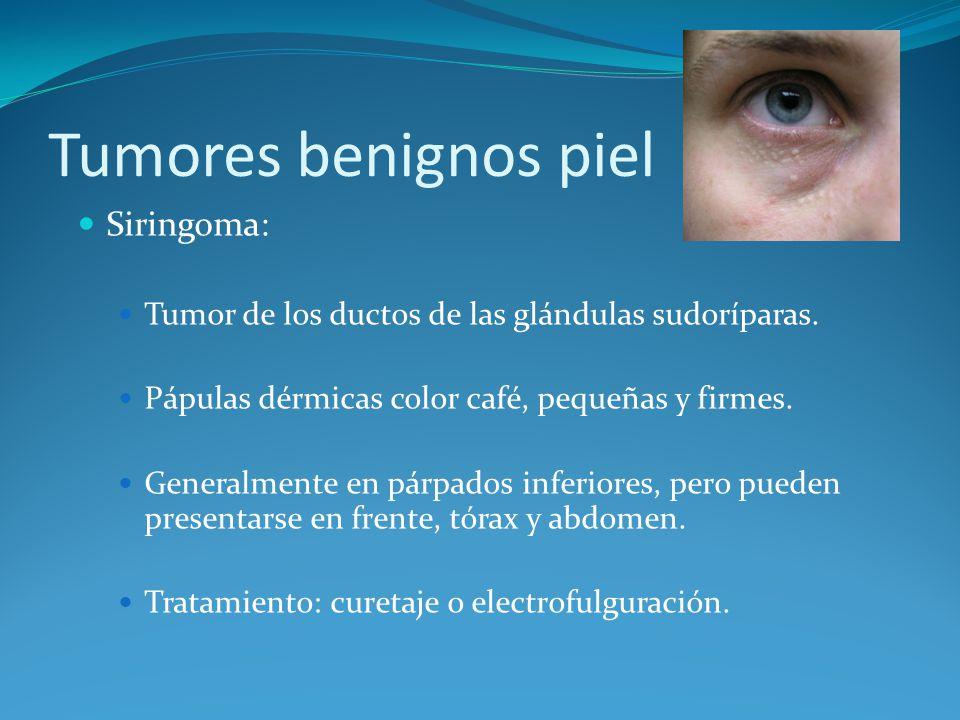 Tumores benignos piel Siringoma: Tumor de los ductos de las glándulas sudoríparas. Pápulas dérmicas color café, pequeñas y firmes. Generalmente en pár
