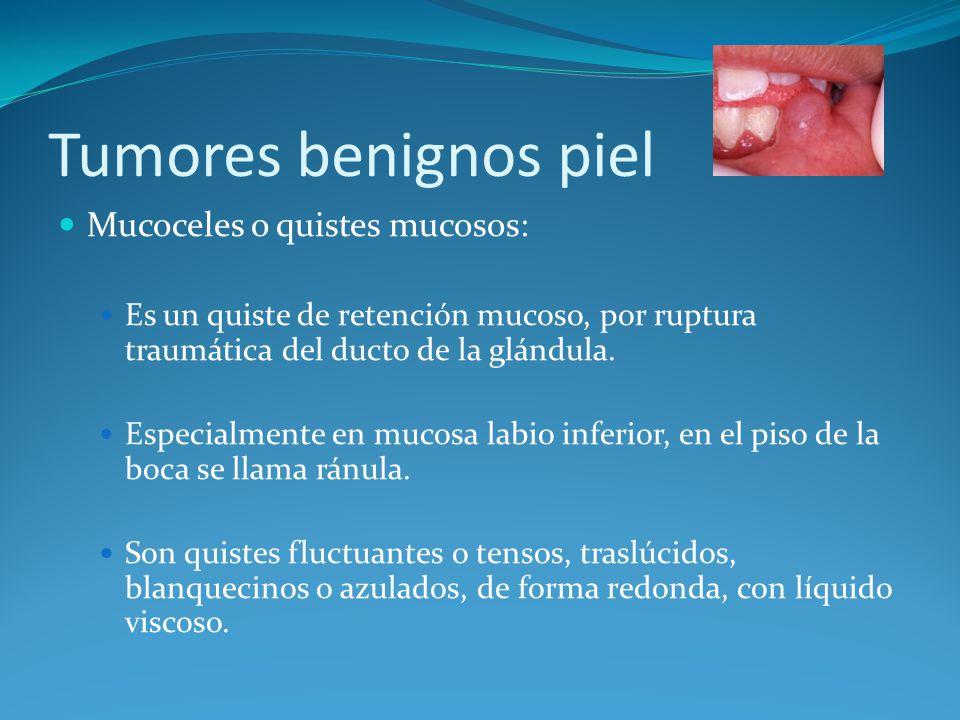 Tumores benignos piel Mucoceles o quistes mucosos: Es un quiste de retención mucoso, por ruptura traumática del ducto de la glándula. Especialmente en