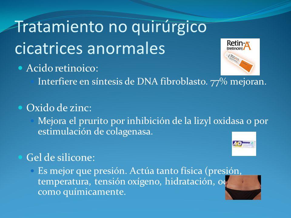 Tratamiento no quirúrgico cicatrices anormales Acido retinoico: Interfiere en síntesis de DNA fibroblasto.