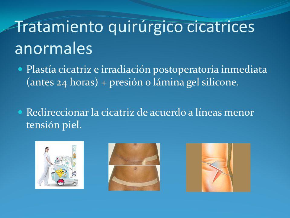 Tratamiento quirúrgico cicatrices anormales Plastía cicatriz e irradiación postoperatoria inmediata (antes 24 horas) + presión o lámina gel silicone.
