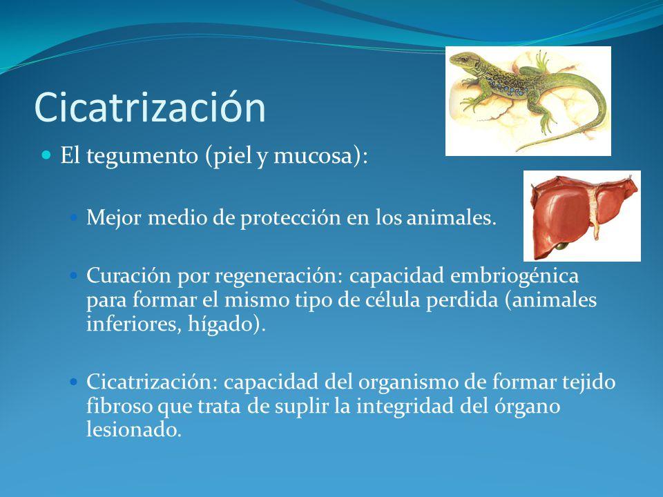 Factores que influencian la cicatrización Cicatrización superficial exagerada: queloides e hipertróficas, con mucho colágeno.