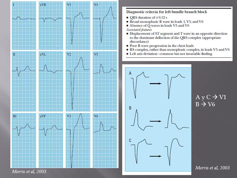 A y C V1 B V6 Morris et al, 2003