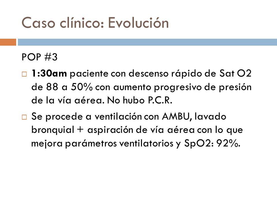 Caso clínico: Evolución POP #3 1:30am paciente con descenso rápido de Sat O2 de 88 a 50% con aumento progresivo de presión de la vía aérea. No hubo P.