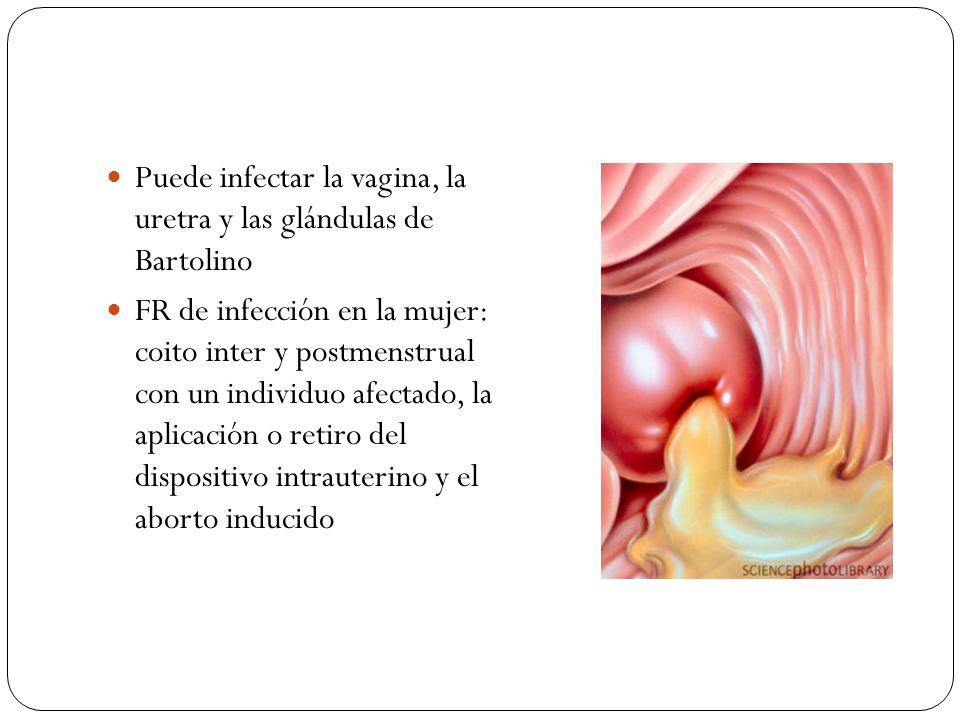 Puede infectar la vagina, la uretra y las glándulas de Bartolino FR de infección en la mujer: coito inter y postmenstrual con un individuo afectado, l