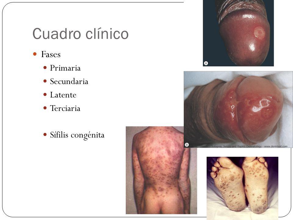 Cuadro clínico Fases Primaria Secundaria Latente Terciaria Sífilis congénita