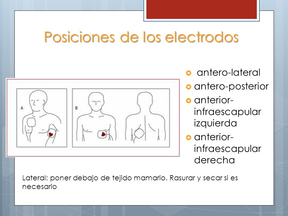 Posiciones de los electrodos antero-lateral antero-posterior anterior- infraescapular izquierda anterior- infraescapular derecha Lateral: poner debajo de tejido mamario.