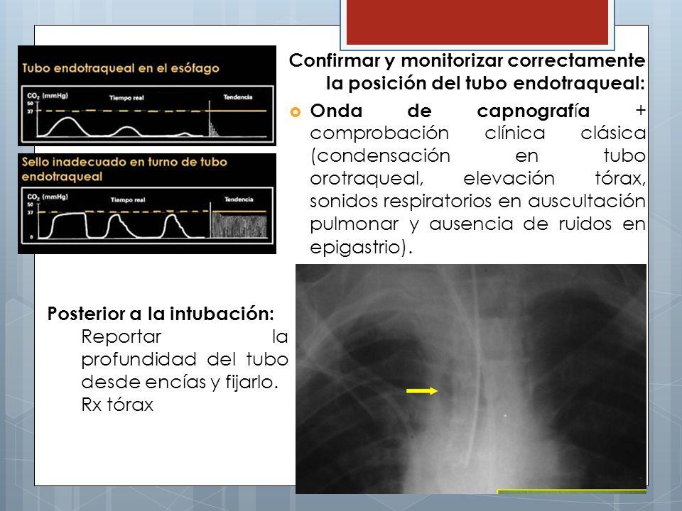 Confirmar y monitorizar correctamente la posición del tubo endotraqueal: Onda de capnograf í a + comprobación clínica clásica (condensación en tubo orotraqueal, elevación tórax, sonidos respiratorios en auscultación pulmonar y ausencia de ruidos en epigastrio).