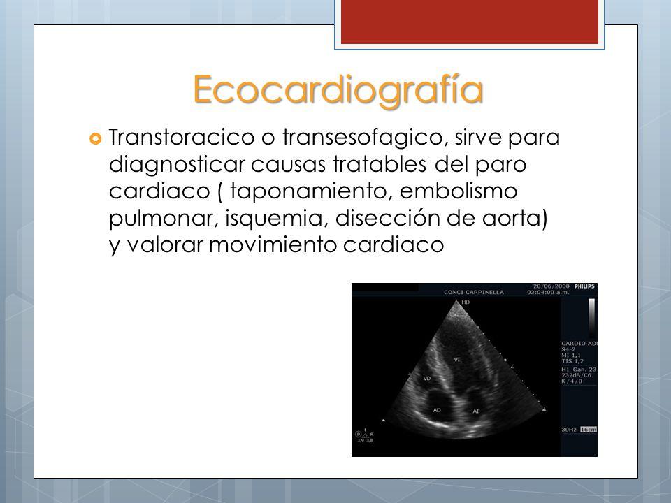 Ecocardiografía Transtoracico o transesofagico, sirve para diagnosticar causas tratables del paro cardiaco ( taponamiento, embolismo pulmonar, isquemi
