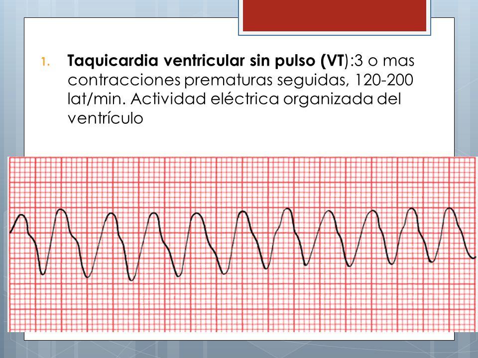 1. Taquicardia ventricular sin pulso (VT ):3 o mas contracciones prematuras seguidas, 120-200 lat/min. Actividad eléctrica organizada del ventrículo