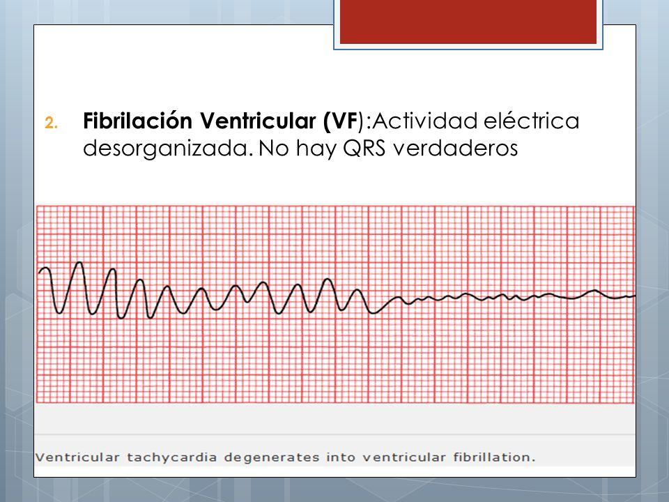 2. Fibrilación Ventricular (VF ):Actividad eléctrica desorganizada. No hay QRS verdaderos