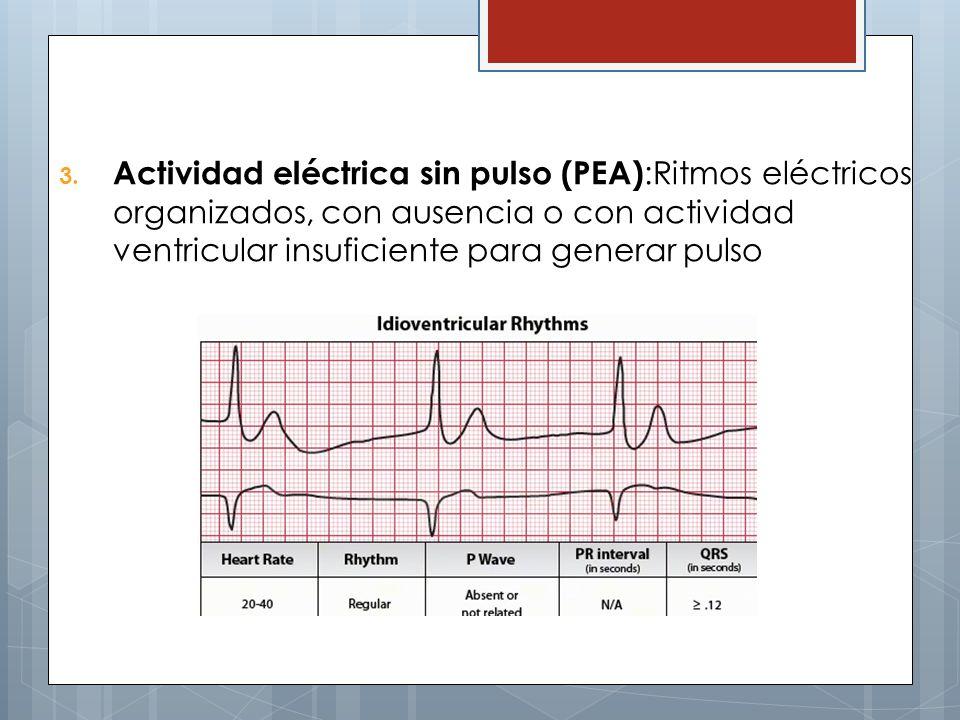 3. Actividad eléctrica sin pulso (PEA) :Ritmos eléctricos organizados, con ausencia o con actividad ventricular insuficiente para generar pulso