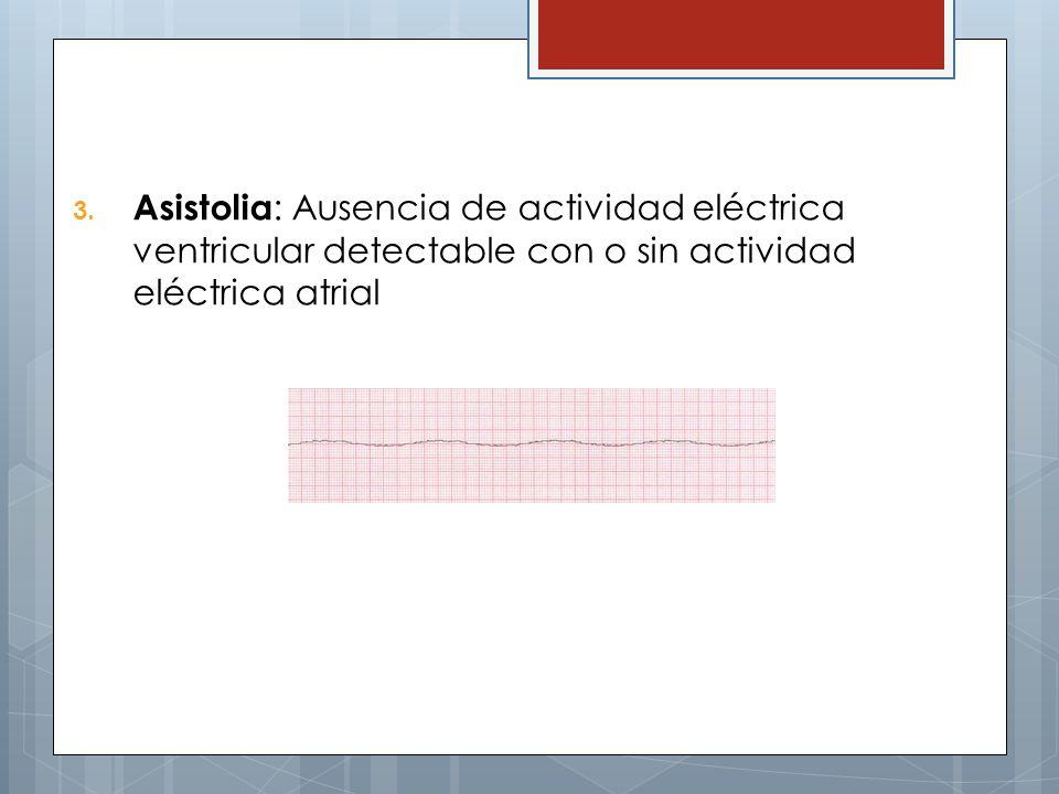 3. Asistolia : Ausencia de actividad eléctrica ventricular detectable con o sin actividad eléctrica atrial