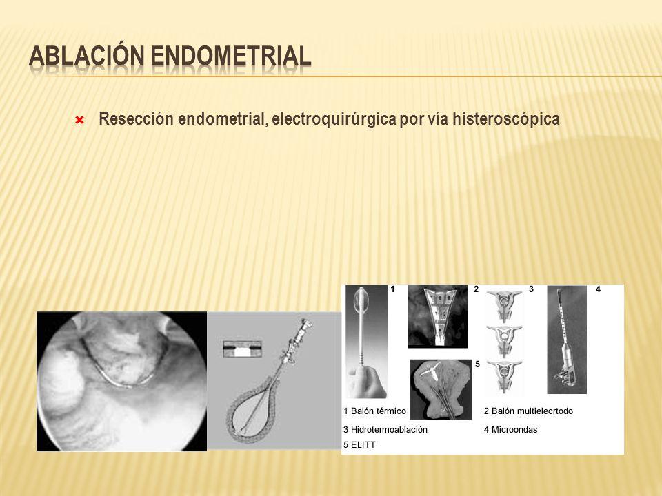 Resección endometrial, electroquirúrgica por vía histeroscópica