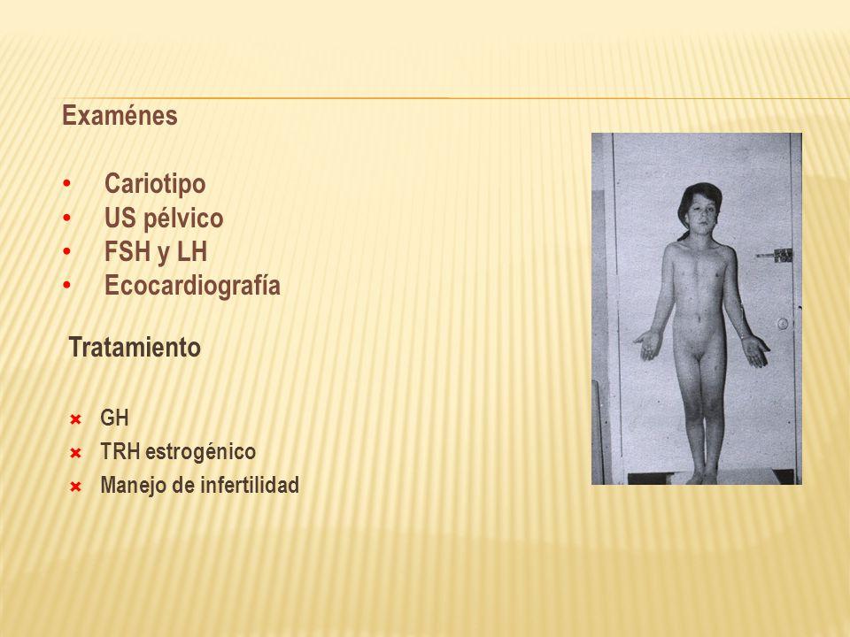 Tratamiento GH TRH estrogénico Manejo de infertilidad Examénes Cariotipo US pélvico FSH y LH Ecocardiografía