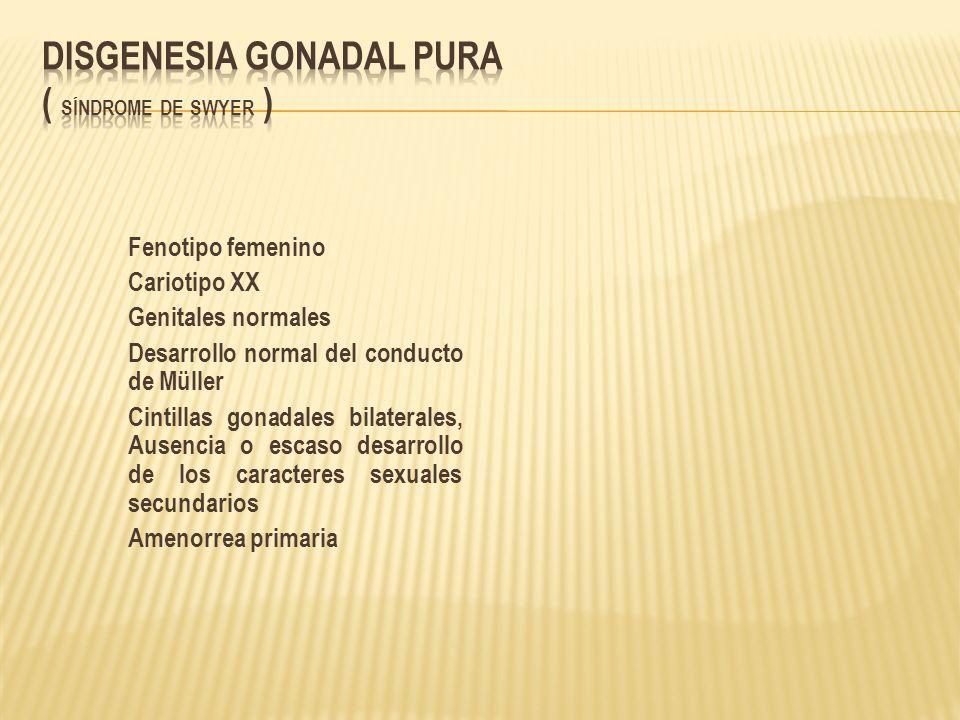 Fenotipo femenino Cariotipo XX Genitales normales Desarrollo normal del conducto de Müller Cintillas gonadales bilaterales, Ausencia o escaso desarrol