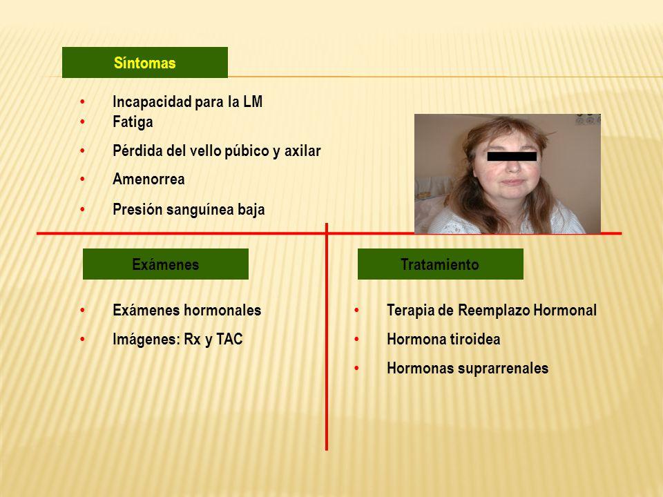 Incapacidad para la LM Fatiga Pérdida del vello púbico y axilar Amenorrea Presión sanguínea baja Síntomas Exámenes Exámenes hormonales Imágenes: Rx y