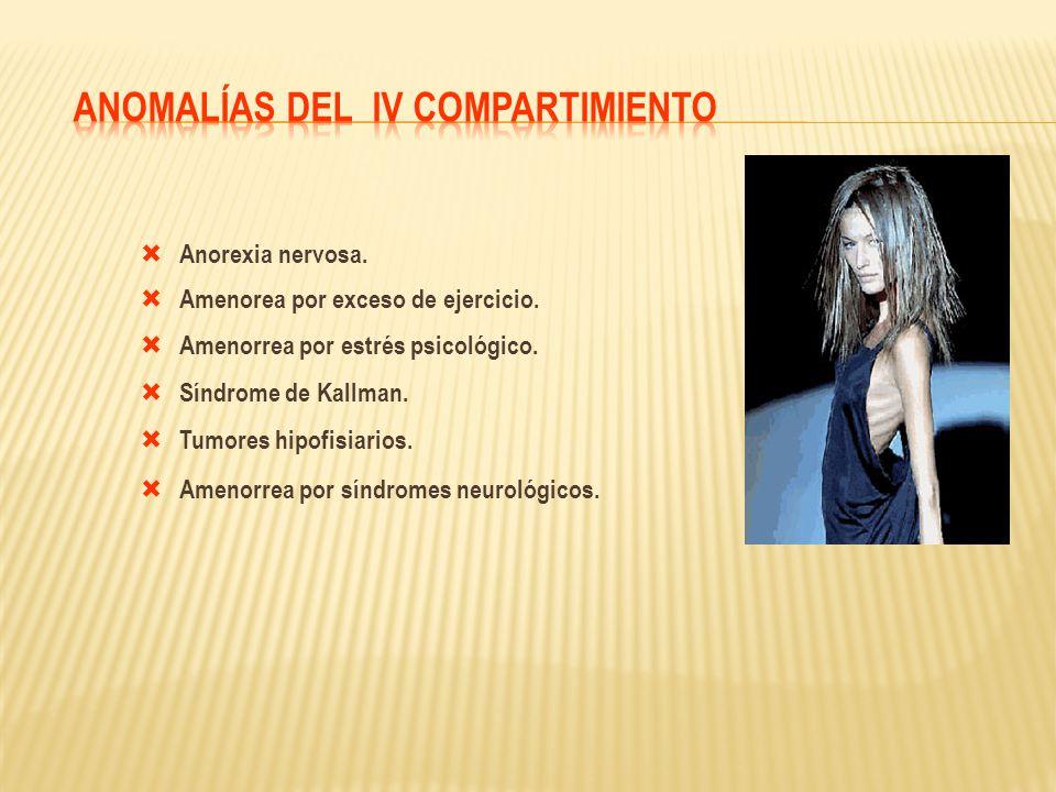 Anorexia nervosa. Amenorea por exceso de ejercicio. Amenorrea por estrés psicológico. Síndrome de Kallman. Tumores hipofisiarios. Amenorrea por síndro