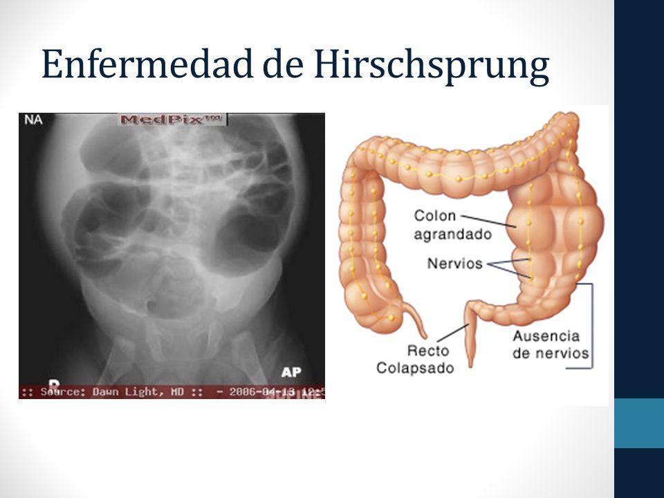Enfermedad de Hirschsprung