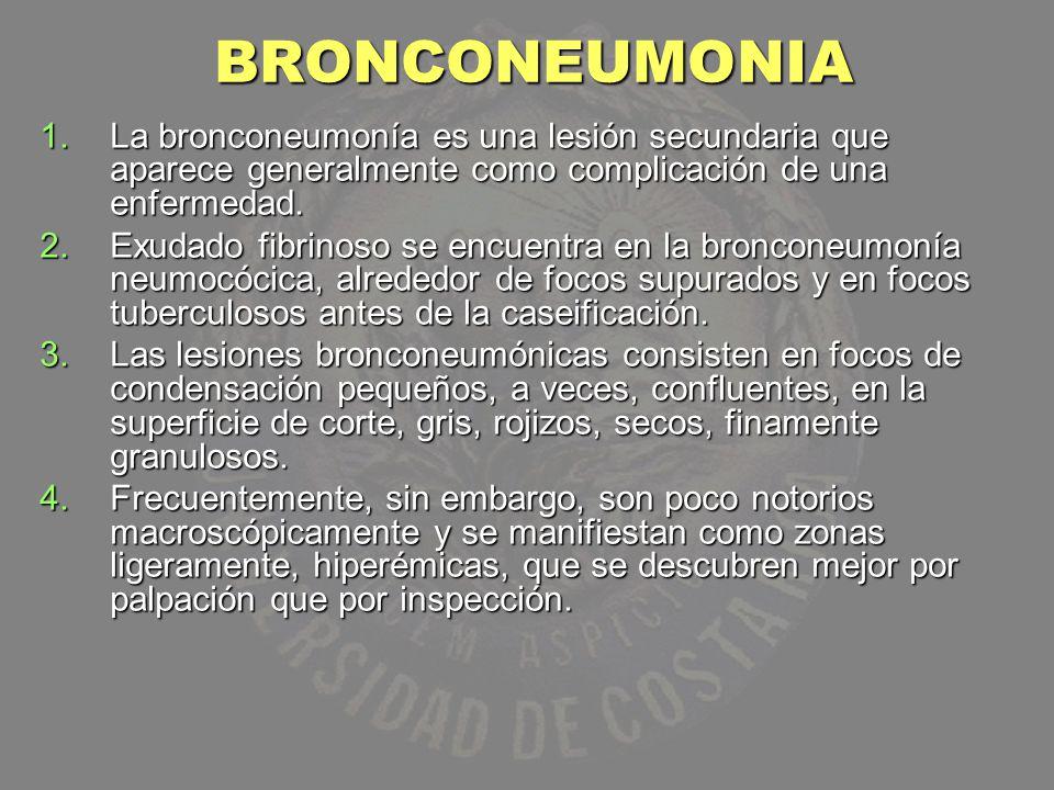 BRONCONEUMONIA 1.La bronconeumonía es una lesión secundaria que aparece generalmente como complicación de una enfermedad. 2.Exudado fibrinoso se encue