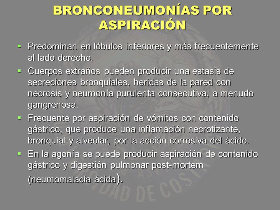 BRONCONEUMONÍAS POR ASPIRACIÓN Predominan en lóbulos inferiores y más frecuentemente al lado derecho. Predominan en lóbulos inferiores y más frecuente
