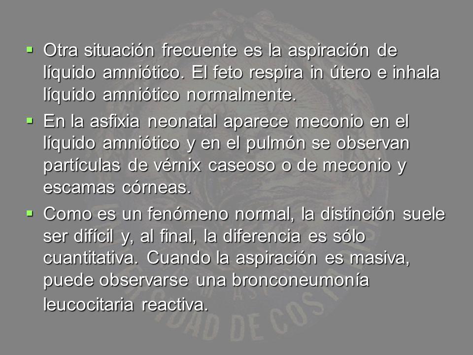 Otra situación frecuente es la aspiración de líquido amniótico. El feto respira in útero e inhala líquido amniótico normalmente. Otra situación frecue