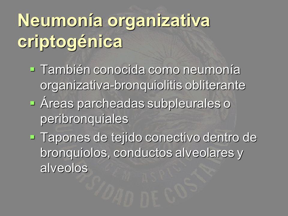 Neumonía organizativa criptogénica También conocida como neumonía organizativa-bronquiolitis obliterante También conocida como neumonía organizativa-b