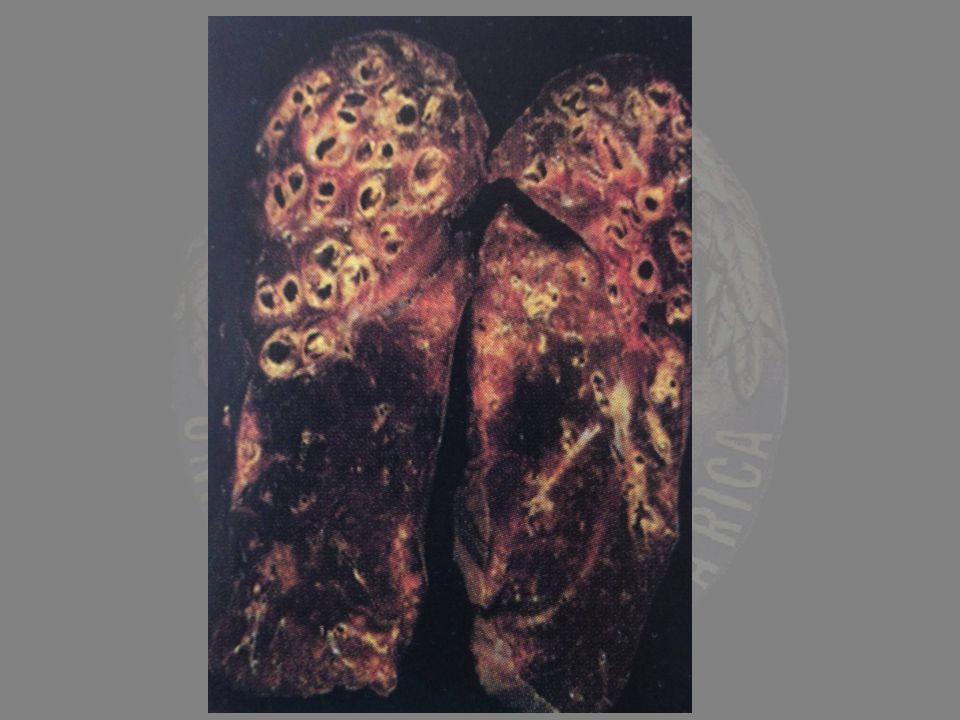 Morfología Más de lóbulos inferiores y regiones subpleurales Más de lóbulos inferiores y regiones subpleurales Fibrosis intersticial parcheada Fibrosis intersticial parcheada Espacios quísticos: fibrosis en panal y focos fibroblásticos incluso en estadios terminales Espacios quísticos: fibrosis en panal y focos fibroblásticos incluso en estadios terminales