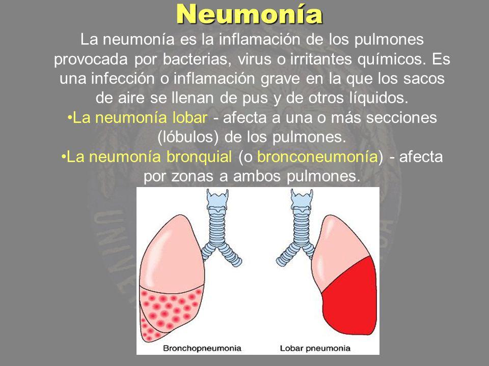 La neumonía es la inflamación de los pulmones provocada por bacterias, virus o irritantes químicos. Es una infección o inflamación grave en la que los
