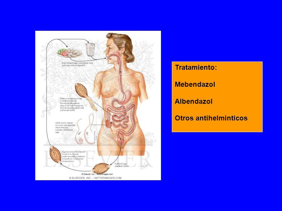 Tratamiento: Mebendazol Albendazol Otros antihelminticos