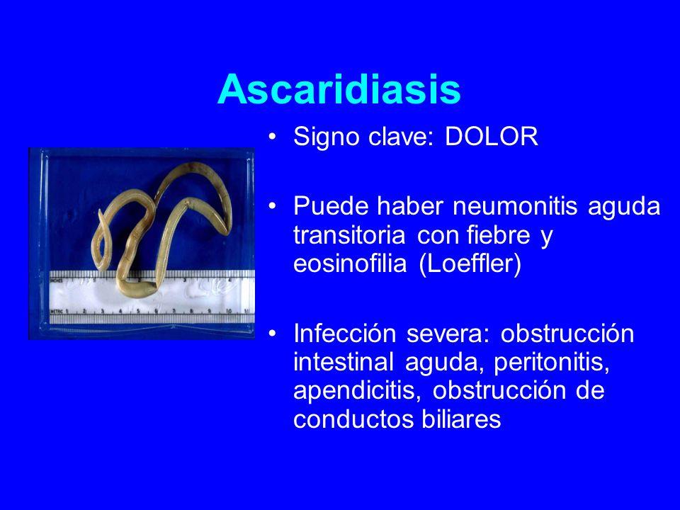 Ascaridiasis Signo clave: DOLOR Puede haber neumonitis aguda transitoria con fiebre y eosinofilia (Loeffler) Infección severa: obstrucción intestinal aguda, peritonitis, apendicitis, obstrucción de conductos biliares