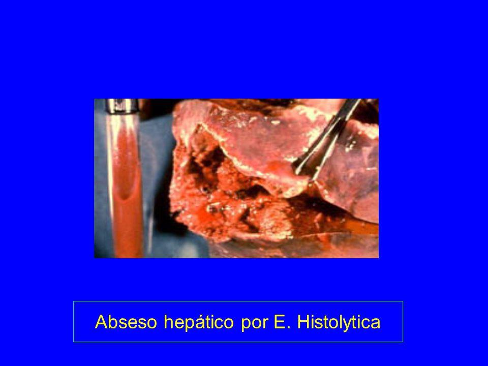 Abseso hepático por E. Histolytica