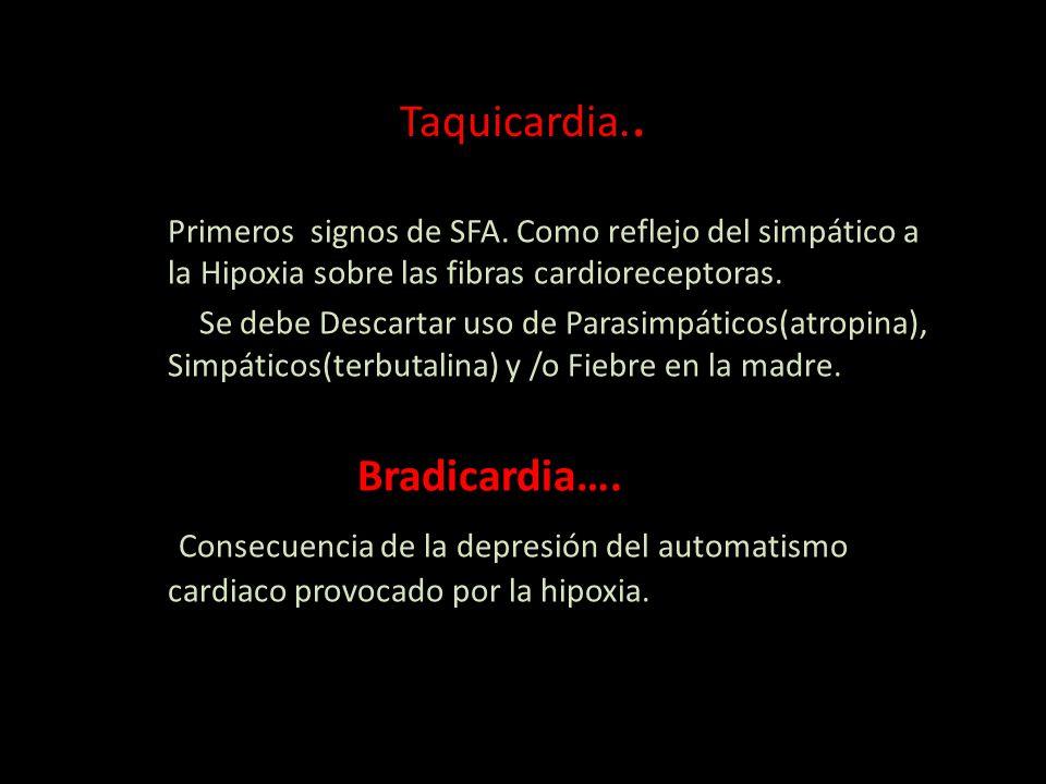 Taquicardia..Primeros signos de SFA.