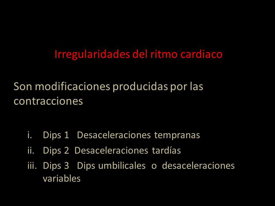 Irregularidades del ritmo cardiaco Son modificaciones producidas por las contracciones i.Dips 1 Desaceleraciones tempranas ii.Dips 2 Desaceleraciones tardías iii.Dips 3 Dips umbilicales o desaceleraciones variables