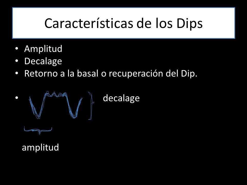 Características de los Dips Amplitud Decalage Retorno a la basal o recuperación del Dip.