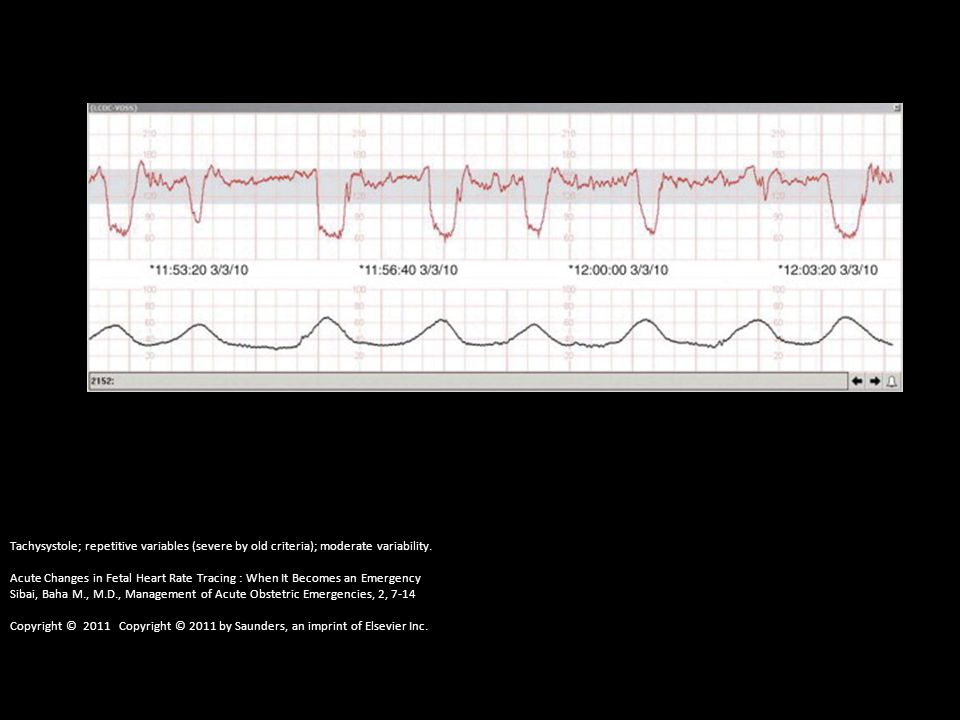 Tachysystole; repetitive variables (severe by old criteria); moderate variability. Acute Changes in Fetal Heart Rate Tracing : When It Becomes an Emer