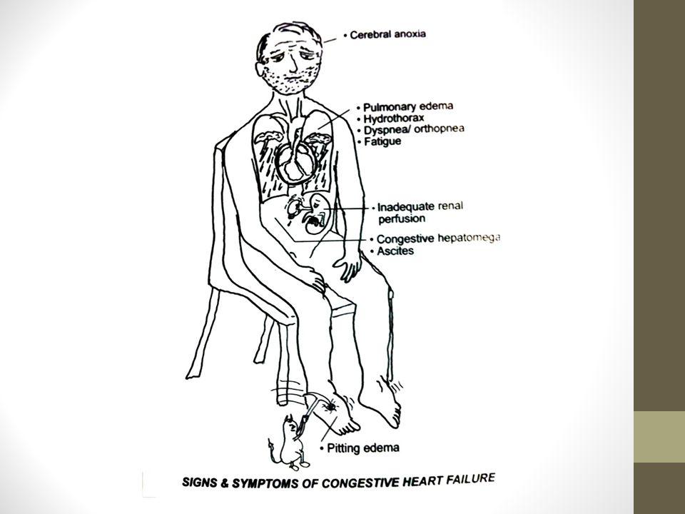 Causas de cor pulmonale Alteración del parénquima pulmonar EPOC Fibrosis Alteración vascular pulmonar intrínseca Embolia Esclerosis vascular pulmonar Vasoconstricción arteriolar mantenida Acidosis metabólica Hipoxemia Alteración de la movilidad torácica Cifoescoliosis Obesidad Enfermedades neuromusculares