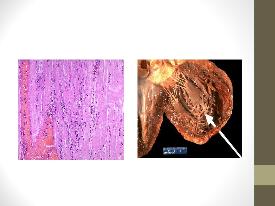 FenómenoTiempo Comienzo del agotamiento del ATP Segundos Perdida de contractilidad < de 2 min Disminucion de ATP10 a 40 min Lesion celular irreversible 20 a 40 min Lesión de la micro circulación > De una hora