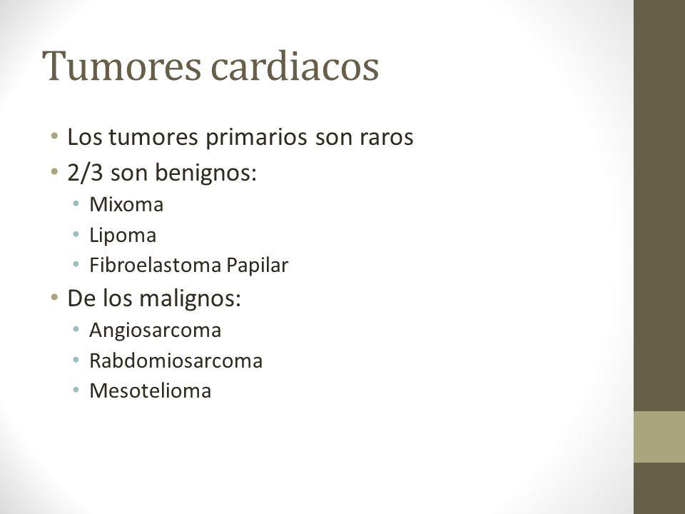 Tumores cardiacos Los tumores primarios son raros 2/3 son benignos: Mixoma Lipoma Fibroelastoma Papilar De los malignos: Angiosarcoma Rabdomiosarcoma Mesotelioma