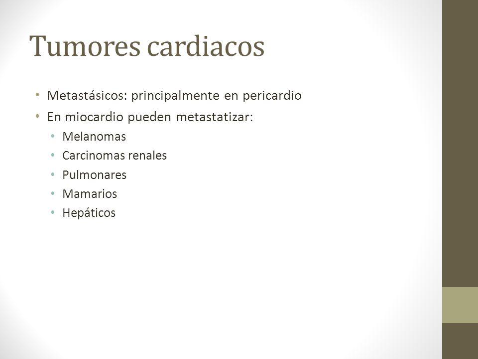 Tumores cardiacos Metastásicos: principalmente en pericardio En miocardio pueden metastatizar: Melanomas Carcinomas renales Pulmonares Mamarios Hepáticos