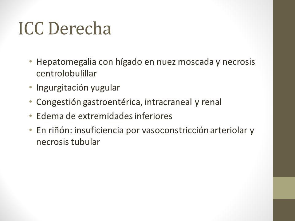 ICC Derecha Hepatomegalia con hígado en nuez moscada y necrosis centrolobulillar Ingurgitación yugular Congestión gastroentérica, intracraneal y renal Edema de extremidades inferiores En riñón: insuficiencia por vasoconstricción arteriolar y necrosis tubular