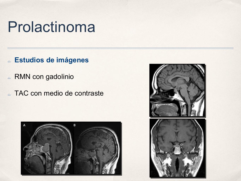 Prolactinoma Estudios de imágenes RMN con gadolinio TAC con medio de contraste