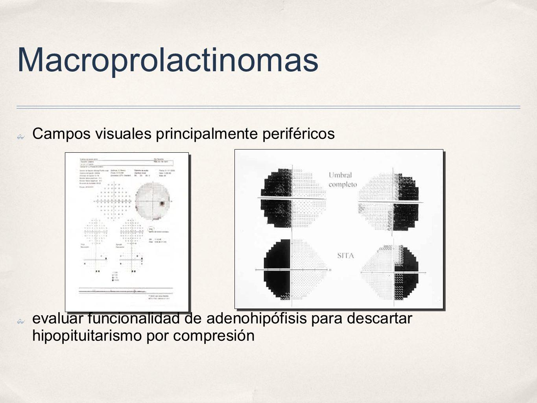 Macroprolactinomas Campos visuales principalmente periféricos evaluar funcionalidad de adenohipófisis para descartar hipopituitarismo por compresión