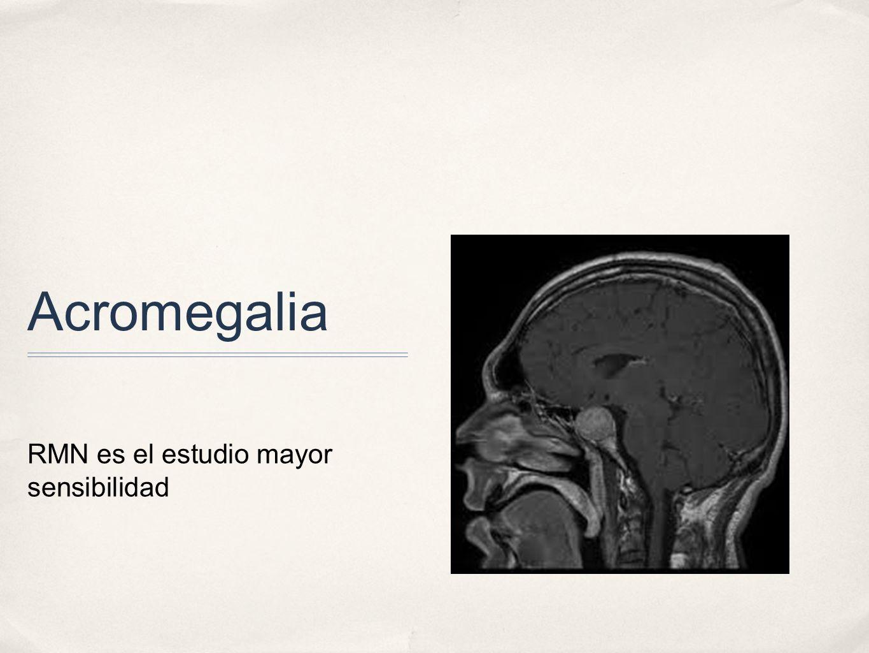 Acromegalia RMN es el estudio mayor sensibilidad
