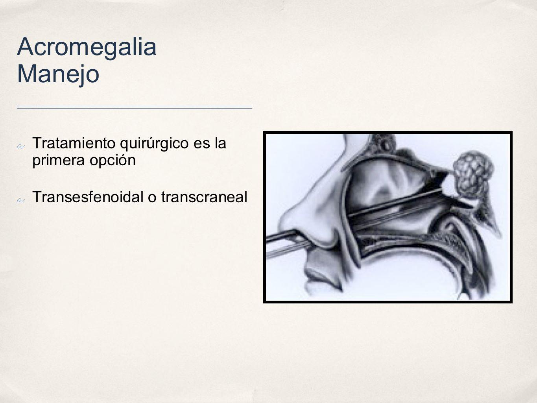Acromegalia Manejo Tratamiento quirúrgico es la primera opción Transesfenoidal o transcraneal