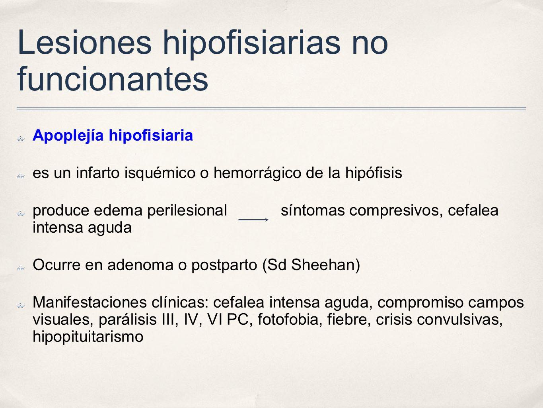 Lesiones hipofisiarias no funcionantes Apoplejía hipofisiaria es un infarto isquémico o hemorrágico de la hipófisis produce edema perilesional síntoma
