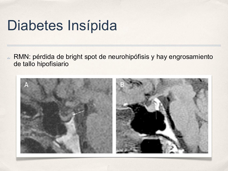 Diabetes Insípida RMN: pérdida de bright spot de neurohipófisis y hay engrosamiento de tallo hipofisiario