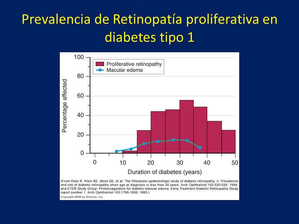 Prevalencia de Retinopatía proliferativa en diabetes tipo 1