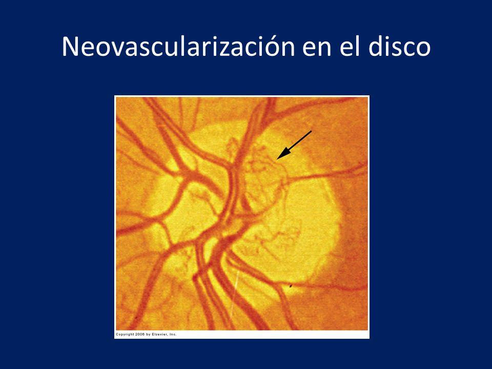 Neovascularización en el disco