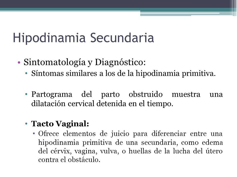 Hipodinamia Secundaria Sintomatología y Diagnóstico: Síntomas similares a los de la hipodinamia primitiva. Partograma del parto obstruido muestra una