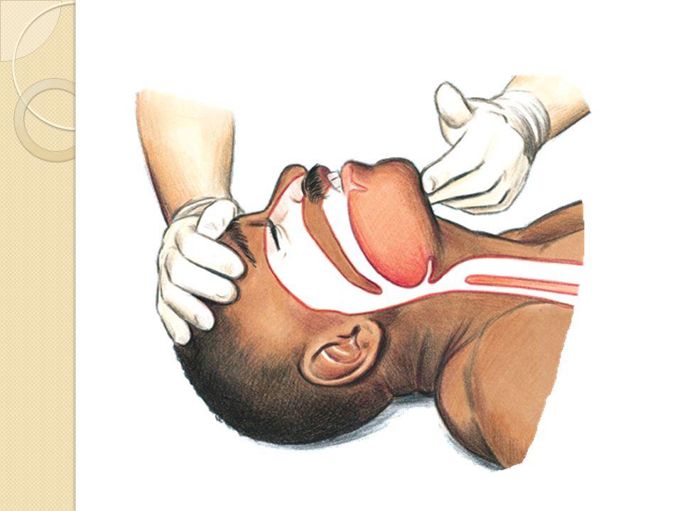 Apertura de la vía aérea Tracción de la mandíbula Extensión de la cabeza + elevación del mentón